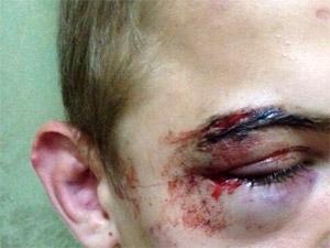 Группа хулиганов избила подростка в 16-м микрорайоне
