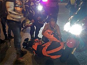 Мотоциклист сломал ногу во время трюка на заднем колесе