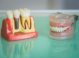 Делать зубы удобнее в Зеленограде