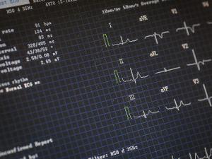 Кардиология в режиме «одного доктора»
