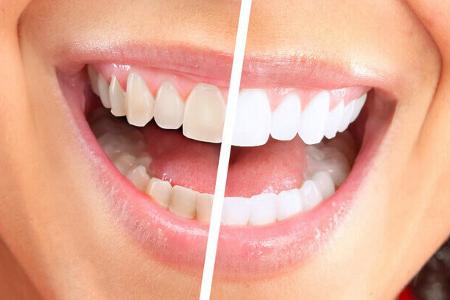 Отбеливайте зубы правильно в стоматологиях «Никор»